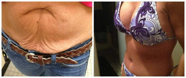 before and after mommy makeover tummy tuck purple bikini