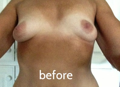 before breast asymmetry