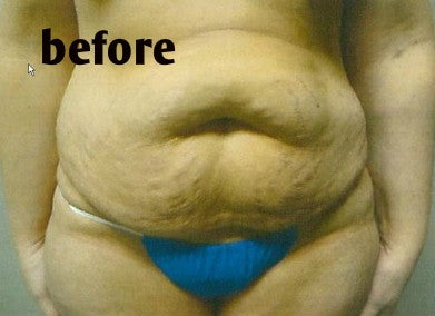 womans abdomen before mommy makeover tummy tuck photo