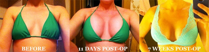 Before and After Breast Augmentation Pictures by a RealSelf User