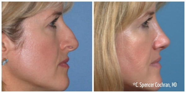 blonde woman with bangs bump on nose rhinoplasty before and after
