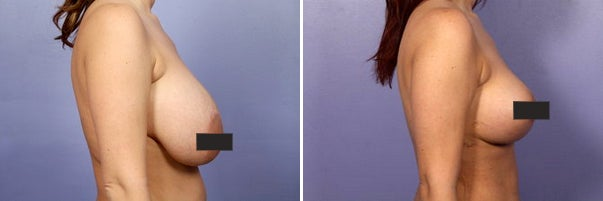 Reasons You Should Remove Your Breast Implants