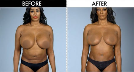 Saaphyri Before and After