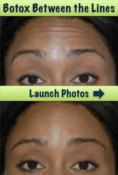 Botox results before and after