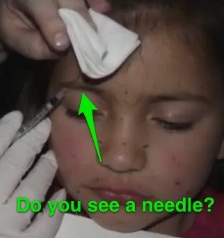 Botox Mom lying about needle