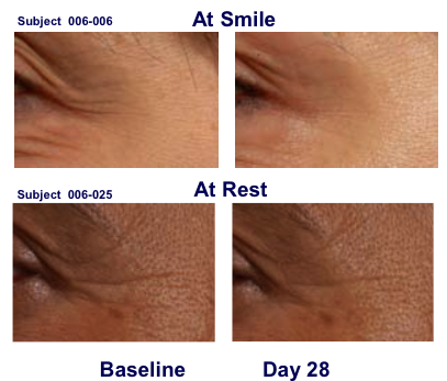 Topical Botulinum Toxin A Cream made by Revance before and after results