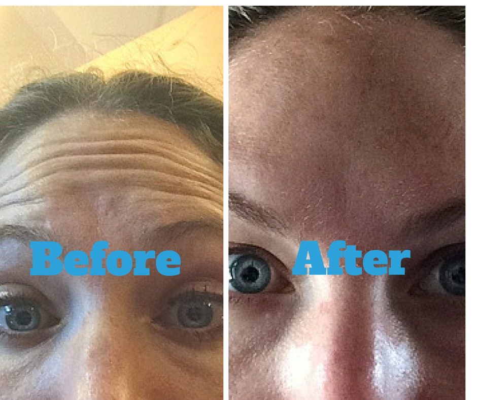 5 days after botox injections, from Jill81's review