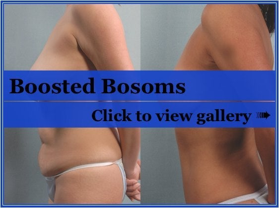 breast lift pictures. Interest in reast lift