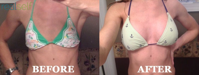 A RealSelf community member shared these photos of herself before and after breast augmentation