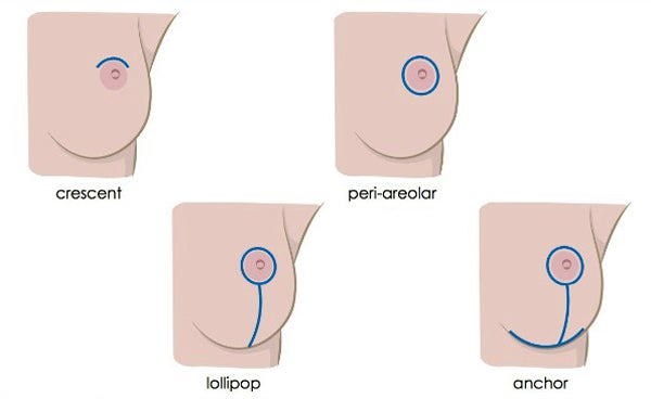 Breast Lift Incision