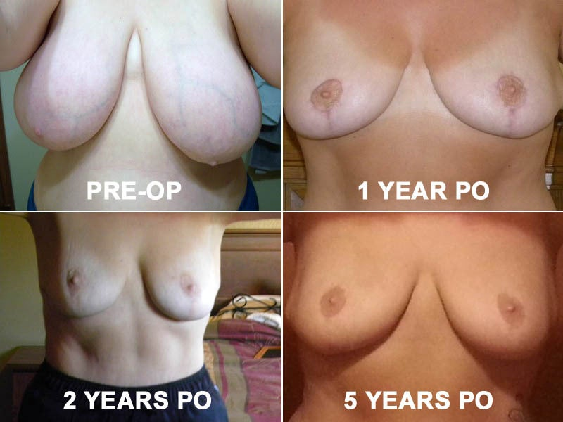 Breast lift and breast reduction surgery photo results over time