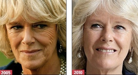 camilla parker bee venom mask then and now