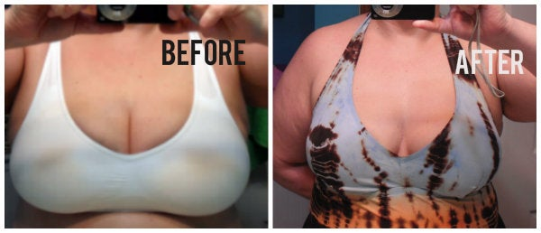 breast reduction changes mom's life