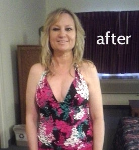 cindy588 after breast reconstruction photo