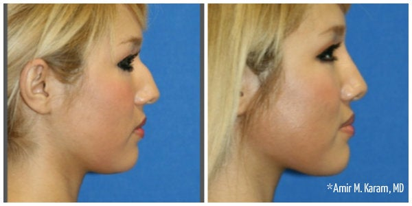 blonde haired girl with bump on nose rhinoplasty before and after