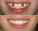dental implants cosmetic dental procedure