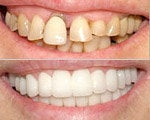 Dental veneers cosmetic dentistry