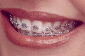Dental braces cosmetic dentistry