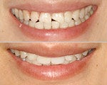 Dental crown cosmetic dentist before and after photo