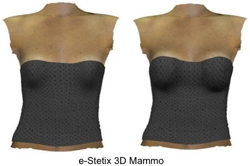 e-Stetix breast implant simulation