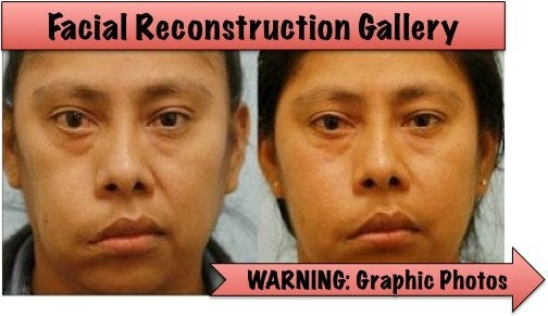 facial reconstruction before and after
