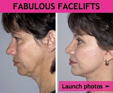Facelift Before and After Gallery on RealSelf