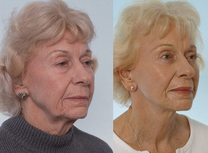 Facelift before and after from RealSelf.com