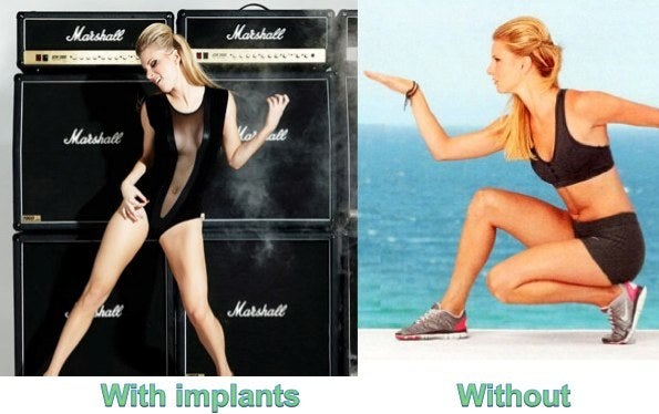 Heather Morris removes breast implants