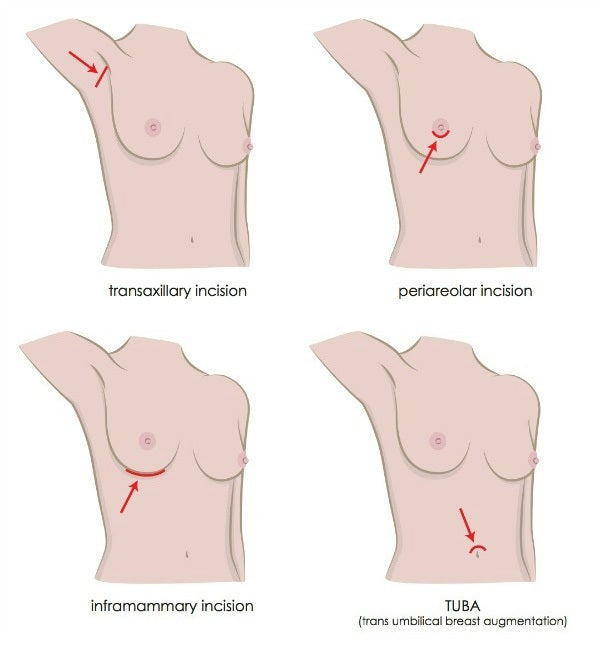 Incision Locations