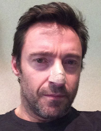 hugh jackman skin cancer surgery basal cell carcinoma