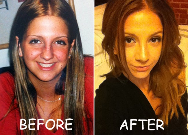 Jenn Farinet Before and After