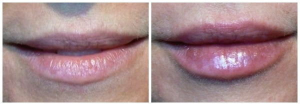 juvederm before after nasolabial folds