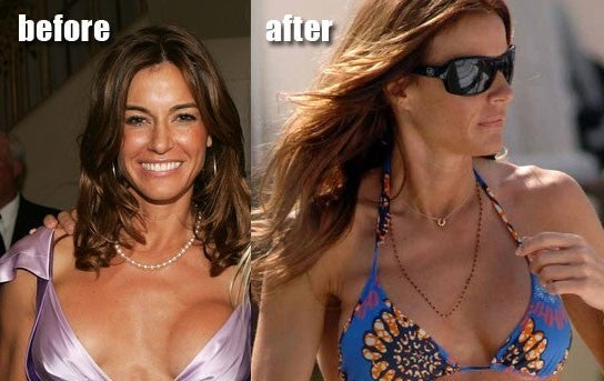 Kelly Bensimon breast implants plastic surgery