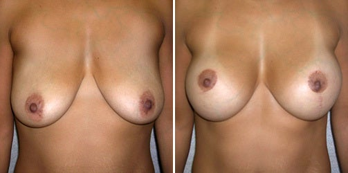 Lift With Implants 2