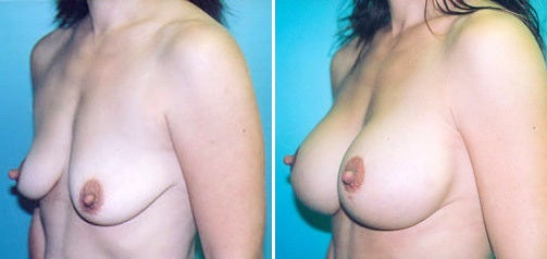 Lift With Implants 1