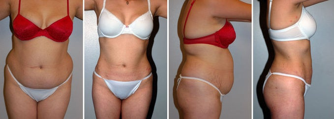 Liposuction Pre- and Post-Op Tips