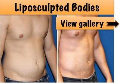 liposculpture before and after photos