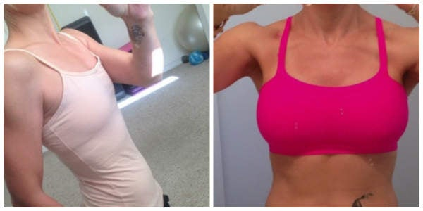 woman in pink bra before and after breast augmentation photo
