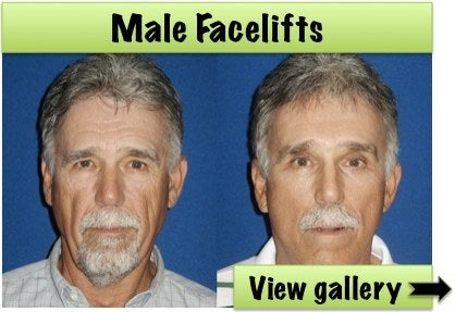male facelift before and after photos