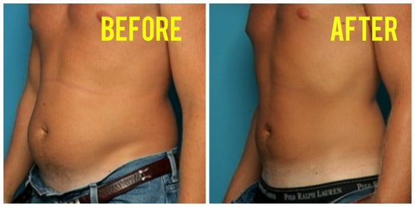 mans stomach before and after liposuction