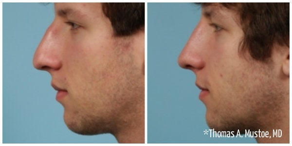 man with brown hair bump on nose rhinoplasty before and after