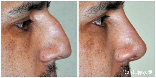 man with bump on nose rhinoplasty before and after