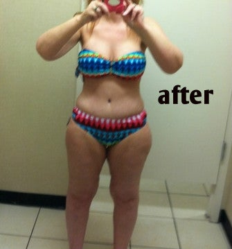 woman in bikini after mommy makeover tummy tuck photo