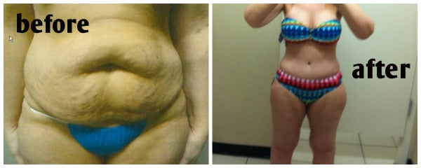 woman's abdomen before and after mommy makeover tummy tuck