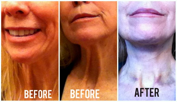 before and after photo neck lift to erase chest wrinkles