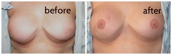nipple tattoo breast reconstruction mary jane haake