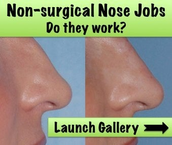 Non-surgical nose job before and after
