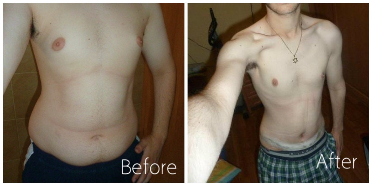 male with blue shorts before and after tummy tuck