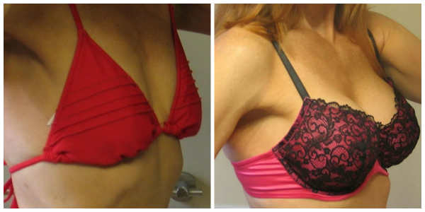 woman in red bikini before and after breast augmentation photo