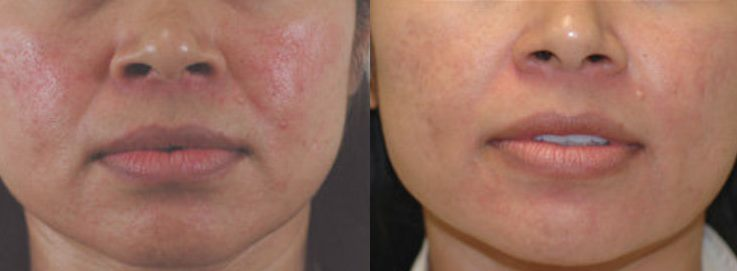 treating rosacea with laser can reduce facial redness